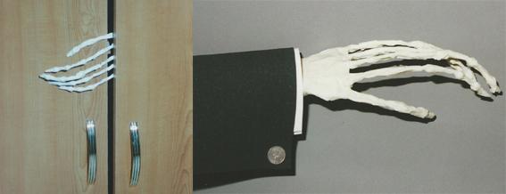 Skeletthand Beispiel